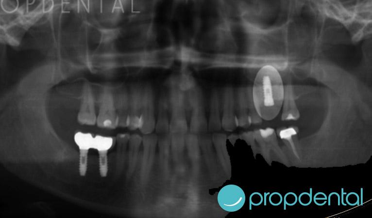 elevacion-seno-maxilar-e-para-un-implante