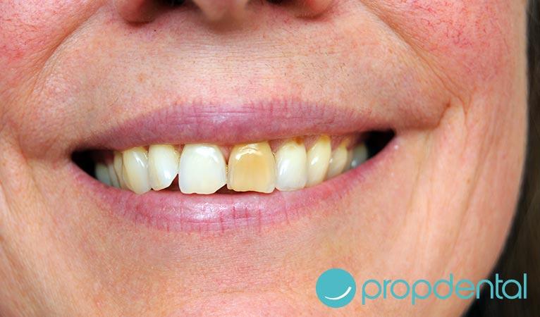 estética dental y manchas en los dientes