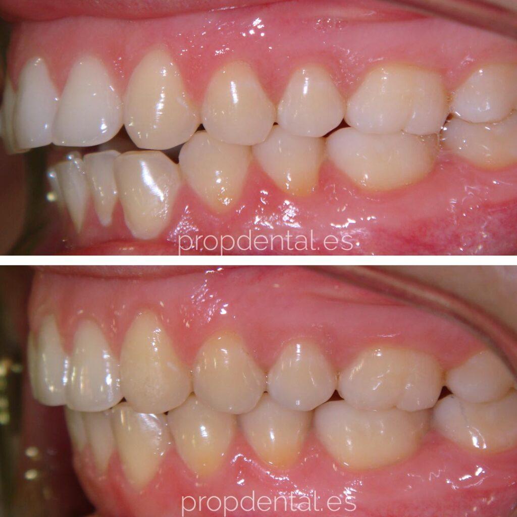 ortodoncia brackets evolucion lateral