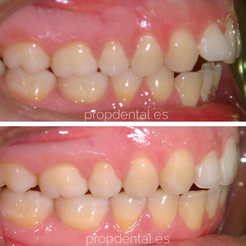 ortodoncia brackets oclusion lateral