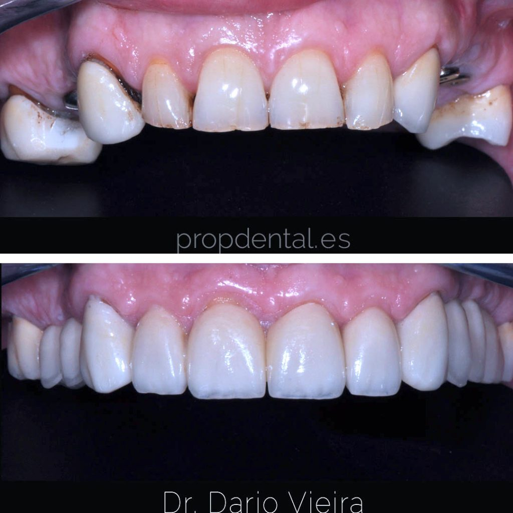 prótesis circonio estética
