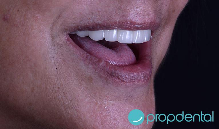 protesis-de-circonio-sobre-implantes