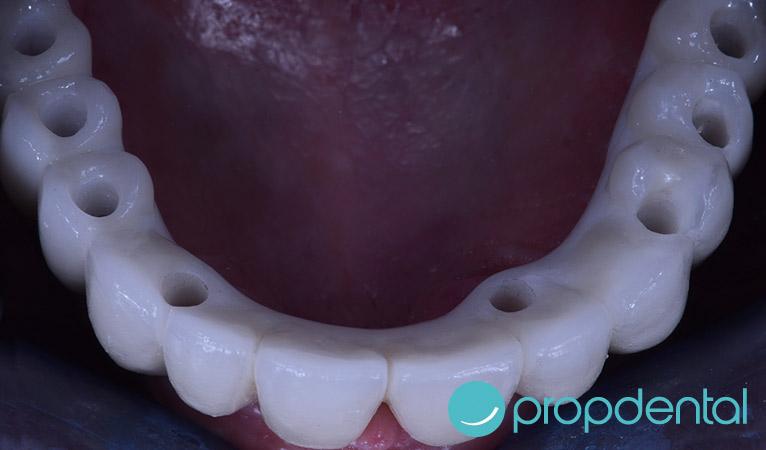 protesis-sobre-implantes-atornillada