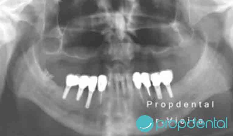 seno-maxilar-falta-de-hueso