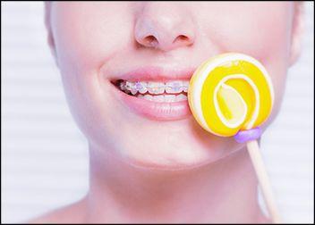 tratamientos brackets de zafiro