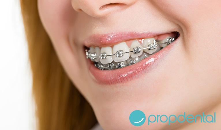 Ortodoncia lo que debes saber