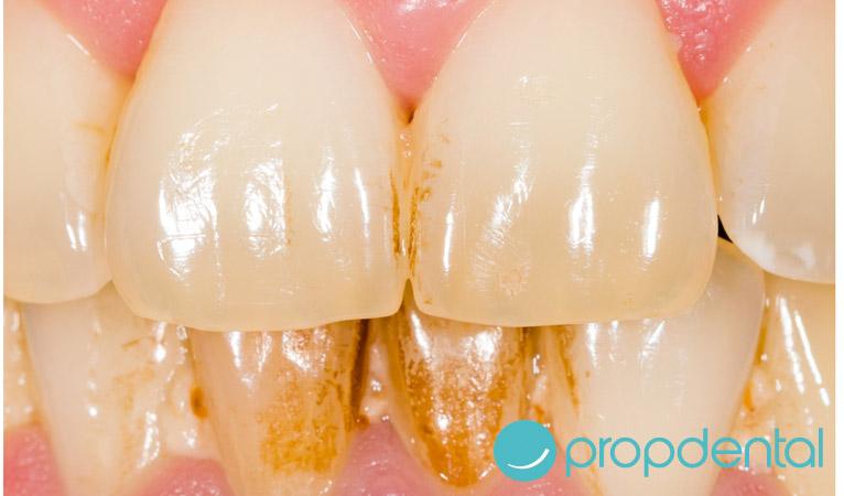 Trucos para evitar el sarro entre los dientes