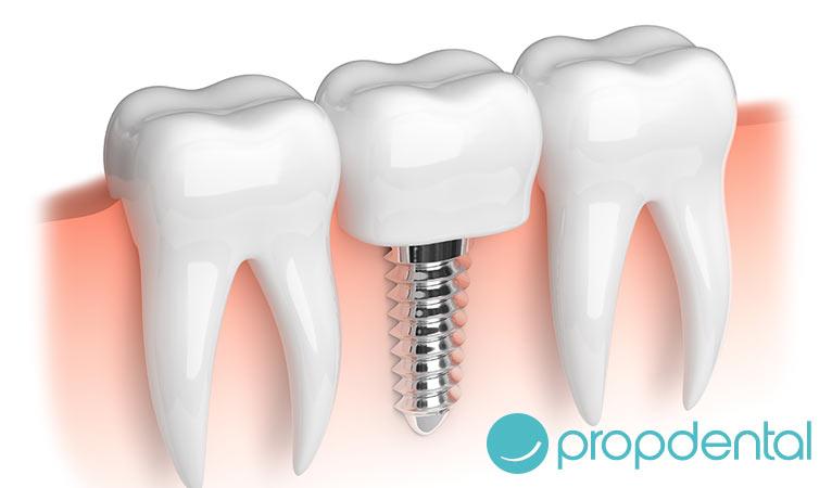 complicaciones en implantes dentales periimplantitis