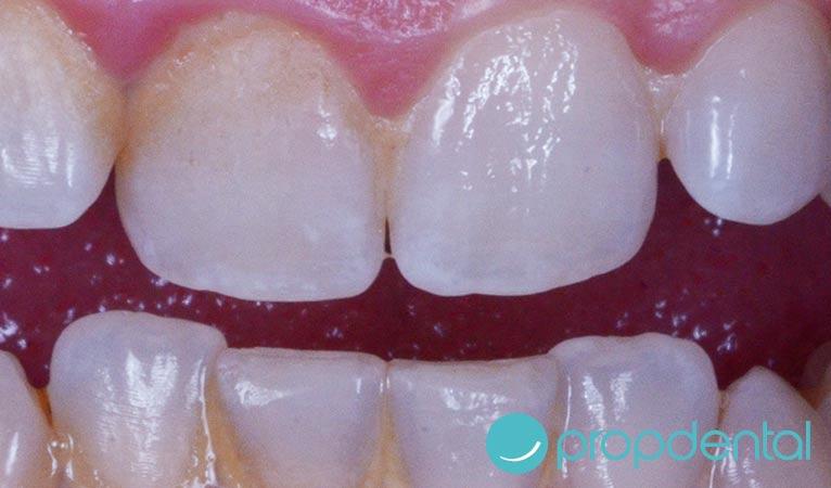 estética dental manchas en los dientes