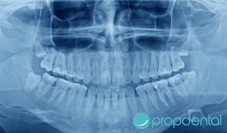 sobre las radiografias dentales