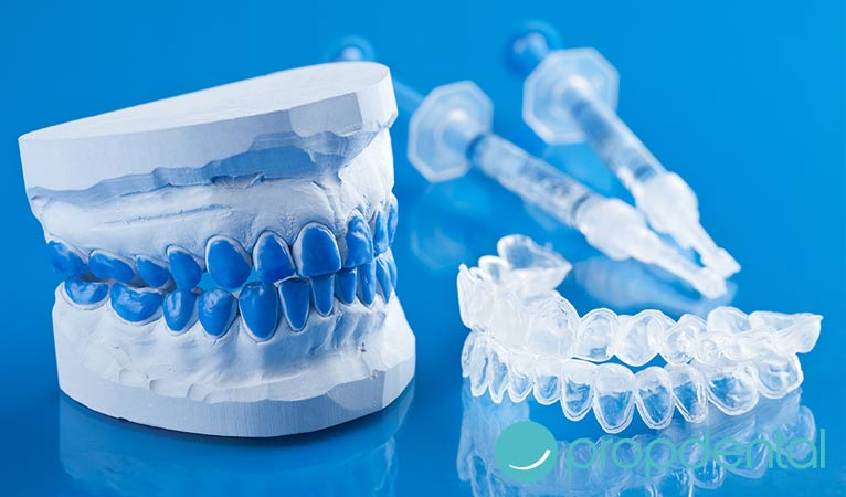 claves del blanqueamiento dental