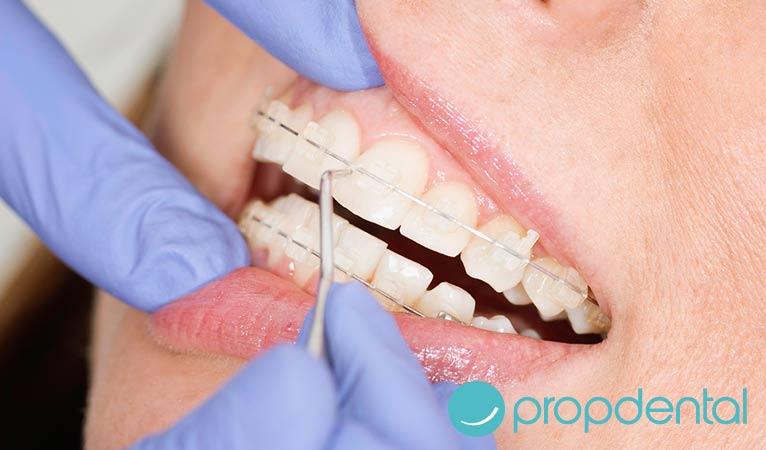 claves limpieza con ortodoncia