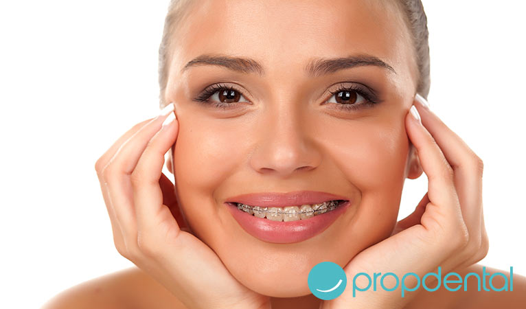 ortodoncia en adultos como elegir