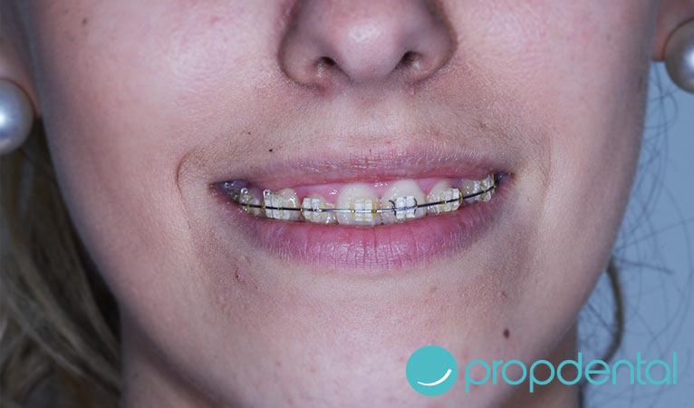 ortodoncia para lucir una sonrisa perfecta