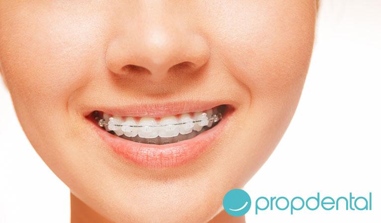 pautas despues de la ortodoncia