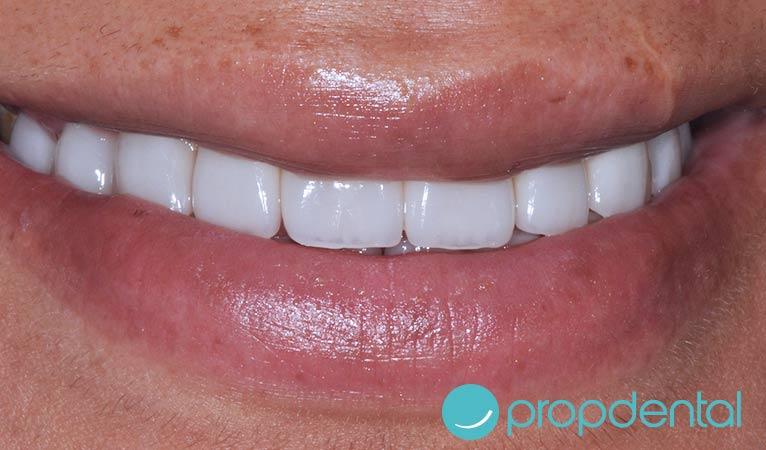 consejos las coronas dentales