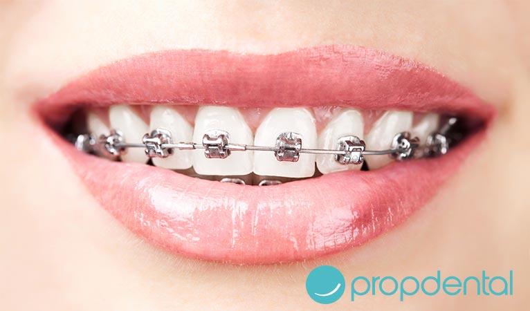 corregir sonrisa la ortodoncia