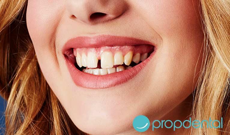dientes separados forma de corregirlos