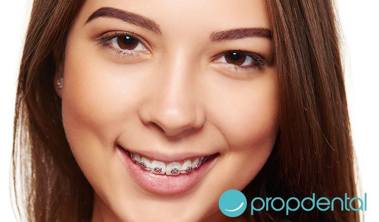 ortodoncia mitos de llevar brackets