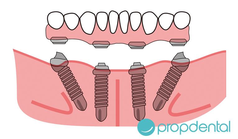 recupera la sonrisa gracias los implantes all on 4
