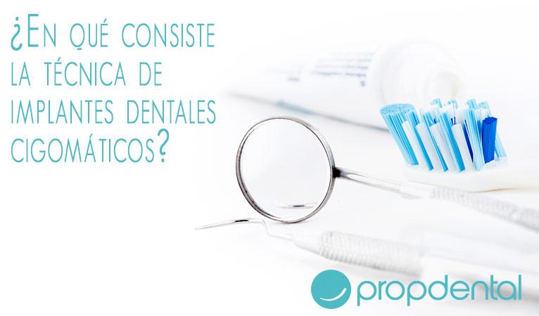 técnica implantes dentales cigomaticos