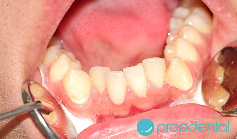 consecuencias del apinamiento dental
