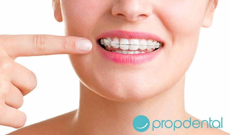 cuidados dentales pacientes ortodoncia