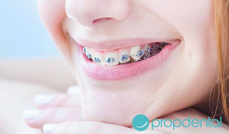 debemos extraer iezas dentales la ortodoncia