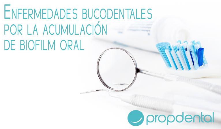 enfermedades-bucodentales-por-la-acumulacion-de-biofilm-oral