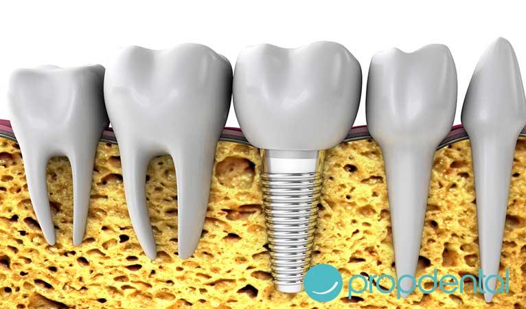 implante dental recomendaciones previas cuenta