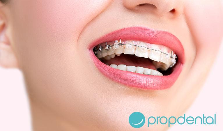 ortodoncia estética adultos