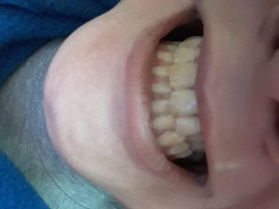 Problema en la coloración en todos mis dientes
