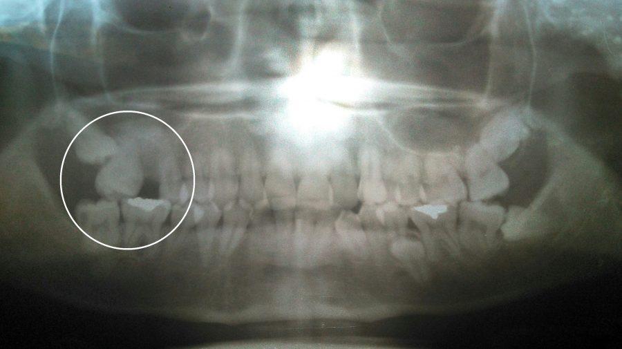 puede ayudarme un tratamiento de ortodoncia