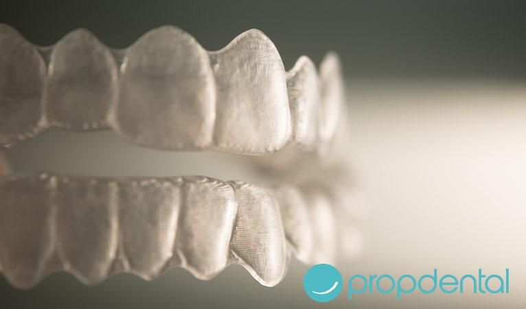 Ortodoncia: Alternativas a los brackets tradicionales