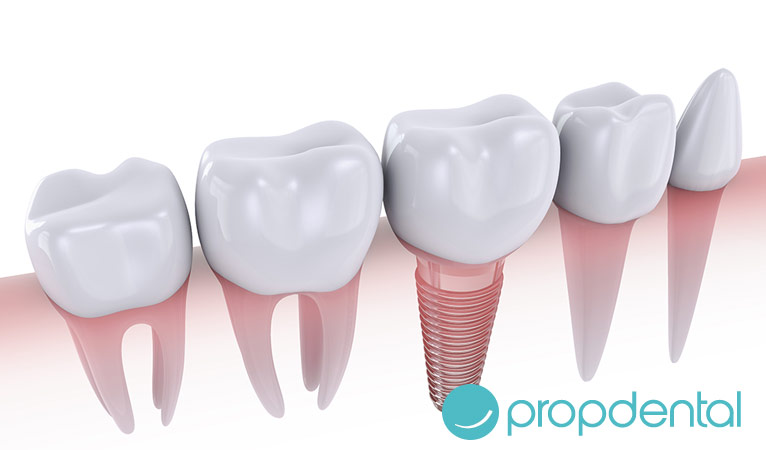 implantes dentales cuidados mantener