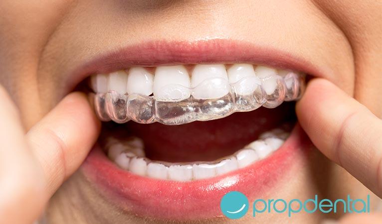 tipos de ortodoncia una ortodoncia para cada tipo de sonrisa