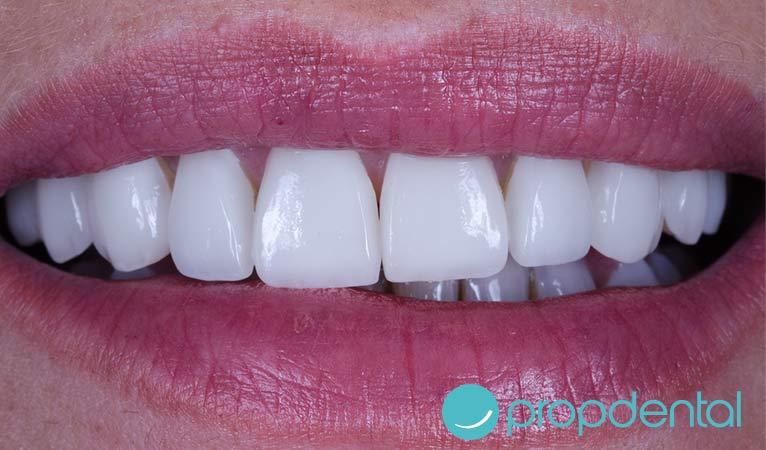 carillas dentales lo debes saber