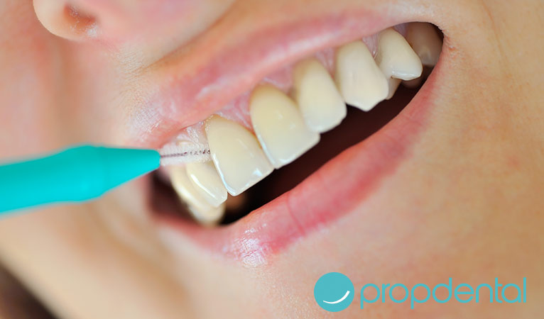 cepillo interdental claves buen uso