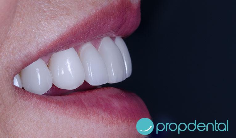estetica dental mejorar sonrisa