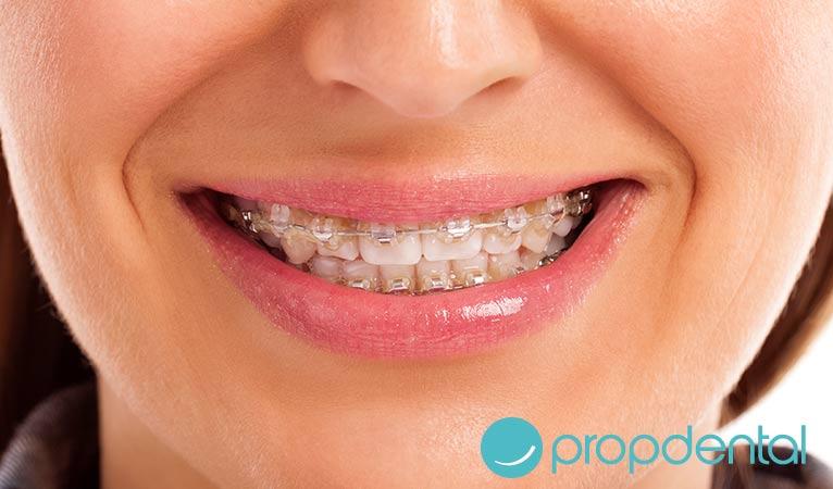 mantener una buena higiene oral la ortodoncia