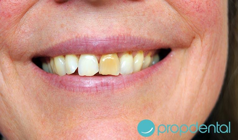 tipos manchas dentales