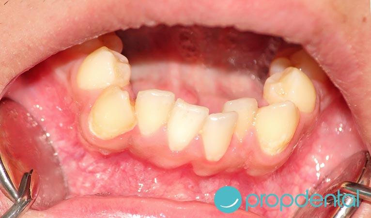 causas de los dientes apinados