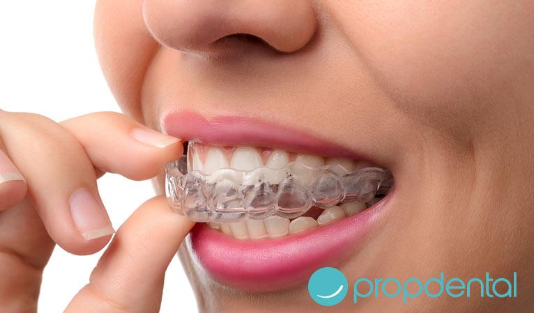 tipos ortodoncia estética