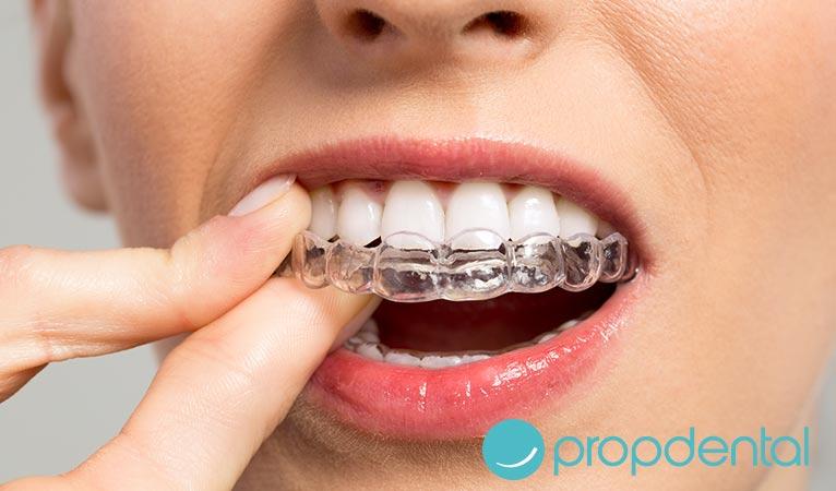 ventajas la ortodoncia invisible 3