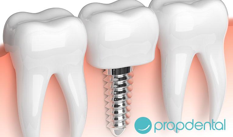 beneficios implantes dentales