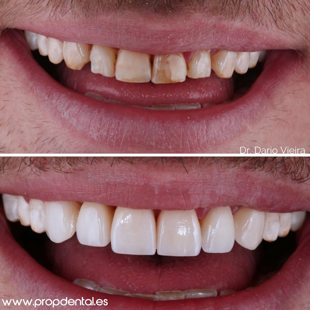 caso-carillas-composite-sonrisa-mejorada