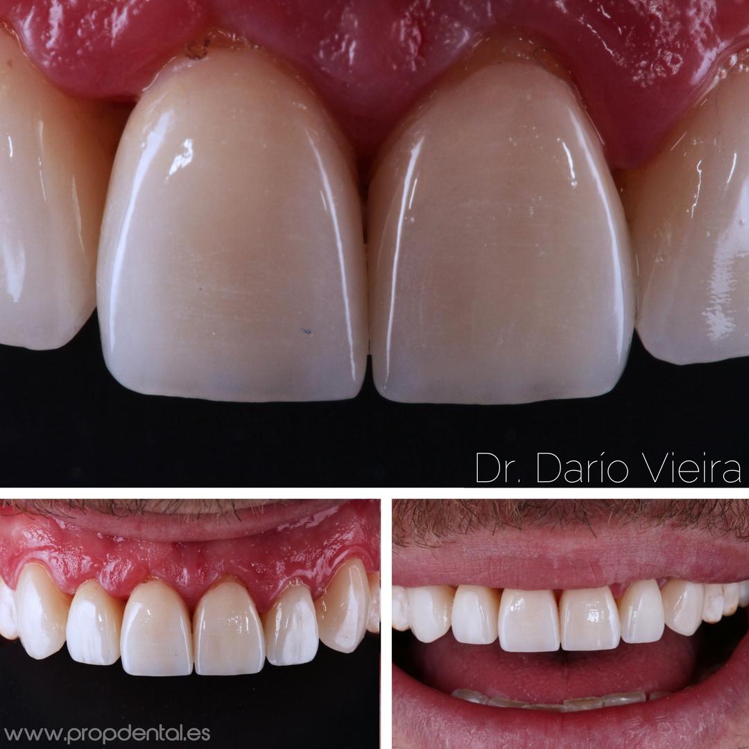 dientes blancos composite estético