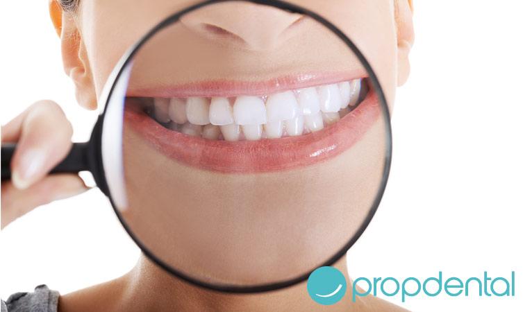 este verano di adios las manchas dentales