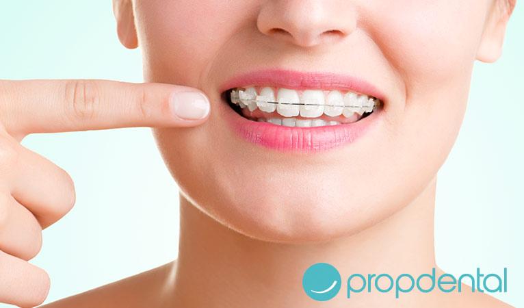 las claves de la ortodoncia