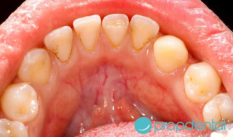 se diferencian gingivitis periodontitis